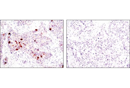 Immunohistochemical analysis of paraffin-embedded human breast carcinoma, control (left) or lambda-phosphatase-treated (right), using Phospho-TCTP (Ser46) Antibody.