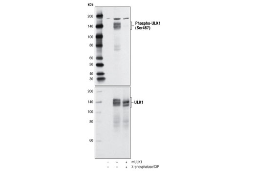 Western blot analysis of extracts from mock transfected and mouse ULK1 (mULK1) transfected 293T cells, untreated or treated with λ-phosphatase and calf intestinal phosphatase (CIP), using Phospho-ULK1 (Ser467) Antibody (upper) or ULK1 (R600) Antibody #4773 (lower).