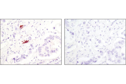 Immunohistochemical analysis of paraffin-embedded human colon carcinoma using LC3A (D50G8) XP<sup>®</sup> Rabbit mAb (left) or</p><p>Rabbit (DA1E) mAb IgG XP<sup>®</sup> Isotype Control #3900 (right).