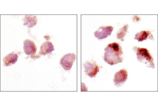 Immunohistochemical analysis of paraffin-embedded HeLa cell pellets, control (left) or choloroquine-treated (right), using LC3A (D50G8) XP<sup>®</sup> Rabbit mAb.
