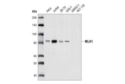 Western blot analysis of extracts from various cell types using MLH1 (D38G9) Rabbit mAb.