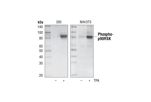 Western blot analysis of extracts from untreated or TPA-treated 293 and NIH/3T3 cells using Phospho-p90RSK (Ser380) (9D9) Rabbit mAb.