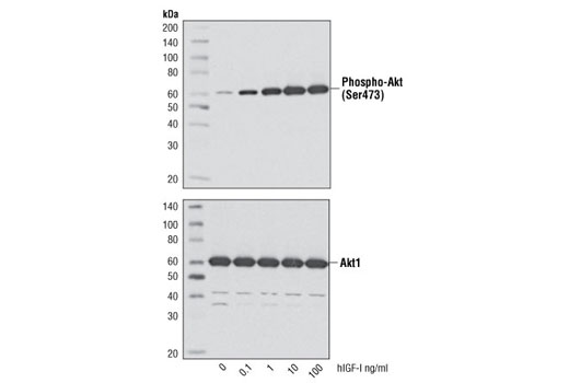 Western blot analysis of extracts from MCF-7 cells, untreated or treated with hIGF-I for 10 minutes, using Phospho-Akt (Ser473) (D9E) XP<sup>®</sup> Rabbit mAb #4060 (upper) and Akt1 (C73H10) Rabbit mAb #2938 (lower).