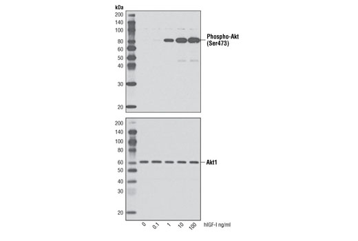 Western blot analysis of extracts from human dermal fibroblasts untreated or treated with hIGF-I for 10 minutes, using Phospho-Akt (Ser473) (D9E) XP<sup>®</sup> Rabbit mAb #4060 (upper) and Akt1 (C73H10) Rabbit mAb #2938 (lower).