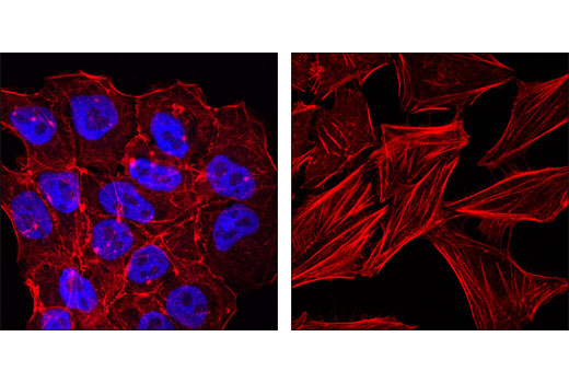 Confocal immunofluorescent analysis of NTERA-2 (left) and HeLa cells (right) using Oct-4A (C30A3) Rabbit mAb (Alexa Fluor<sup>®</sup> 647 Conjugate) (blue pseudocolor). Actin filaments have been labeled with DY-554 phalloidin (red).