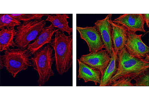 Confocal immunofluorescent analysis of HeLa cells, untreated (left) or treated with Trichostatin A #9950 (right), using Acetyl-α-Tubulin (Lys40) (D20G3) XP<sup>®</sup> Rabbit mAb (green). Actin filaments have been labeled with DY-554 phalloidin (red). Blue pseudocolor = DRAQ5® #4084 (fluorescent DNA dye).