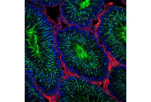 Confocal immunofluorescent analysis of rat testes using Acetyl-α-Tubulin (Lys40) (D20G3) XP® Rabbit mAb #5335 (green) and Pan-Keratin (C11) Mouse mAb #4545 (red). Blue pseudocolor = DRAQ5® #4084 (fluorescent DNA dye).