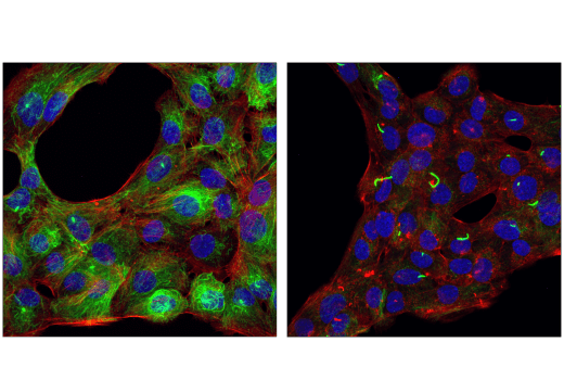 Confocal immunofluorescent analysis of MCF10a cells, serum-starved (24 hr; left) or treated with Cytochalasin D (200 nM, 16 hr; right) using Acetyl-α-Tubulin (Lys40) (D20G3) XP® Rabbit mAb (green). Actin filaments were labeled with DyLight™ 554 Phalloidin #13054 (red). Blue pseudocolor = DRAQ5<sup>®</sup> #4084 (fluorescent DNA dye).