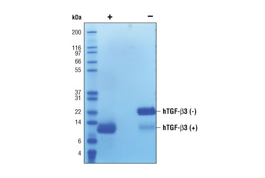 Image 2: Human Transforming Growth Factor β3 (hTGF-β3)
