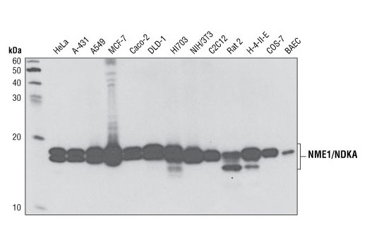 Monoclonal Antibody Western Blotting Nucleoside Diphosphate Kinase Activity