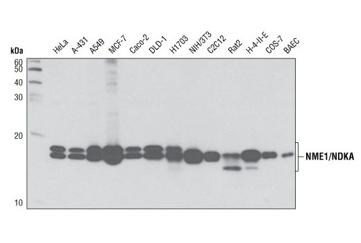 Western blot analysis of extracts from various cells lines using NME1/NDKA (D18F10) Rabbit mAb.