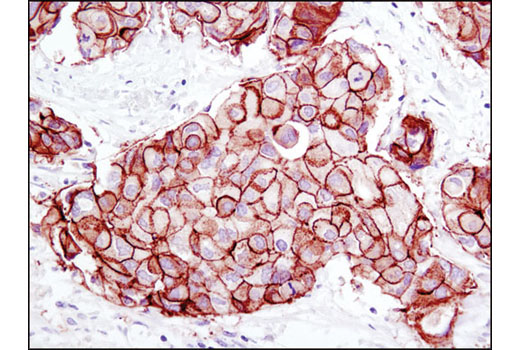 Immunohistochemical analysis of paraffin-embedded human breast carcinoma using HER2/ErbB2 (D8F12) XP<sup>®</sup> Rabbit mAb.