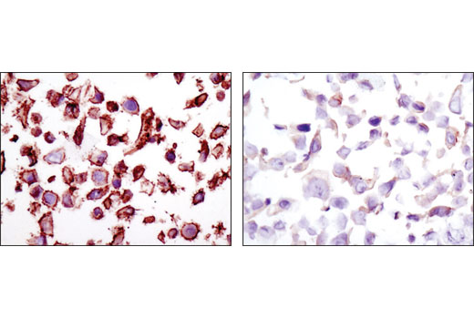 Immunohistochemical analysis of paraffin-embedded SK-BR-3 (Her2 high, left) and MCF7 cell pellets (Her2 low, right) using HER2/ErbB2 (D8F12) XP<sup>®</sup> Rabbit mAb.