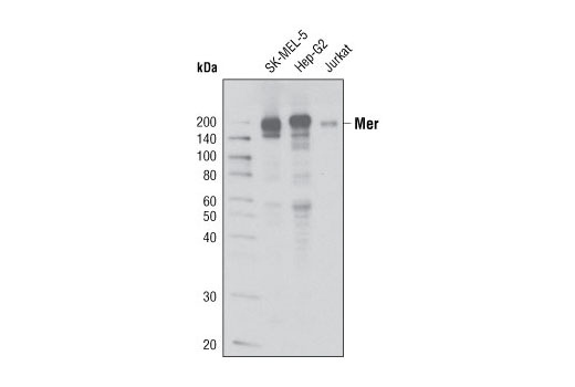 Western blot analysis of extracts from SK-MEL-5, Hep G2 and Jurkat cells using Mer (D21F11) XP<sup>®</sup> Rabbit mAb.
