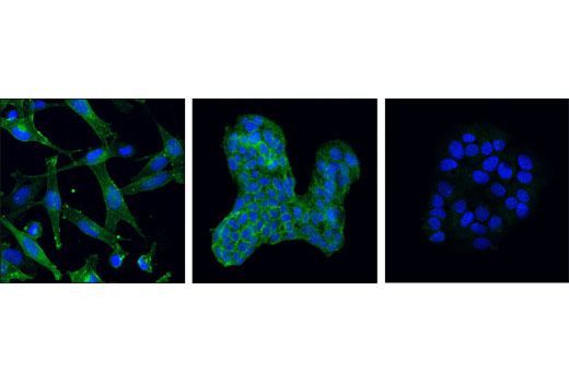 Confocal immunofluorescent analysis of SK-MEL-5 cells (left), Hep G2 cells (center) and MCF7 cells (right) using Mer (D21F11) XP<sup>®</sup> Rabbit mAb (green). Blue pseudocolor = DRAQ® #4084 (fluorescent DNA dye).