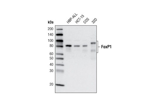Western blot analysis of extracts from various cell lines using FoxP1 (D35D10) XP<sup>®</sup> Rabbit mAb.