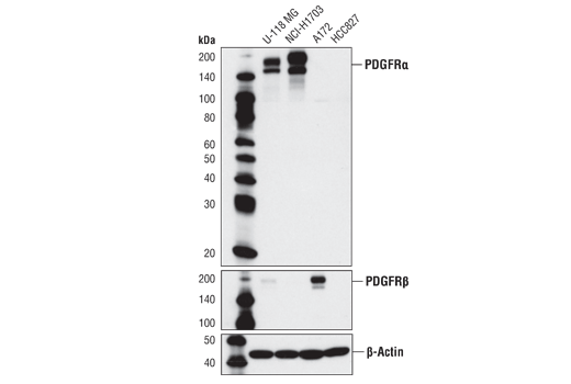 Western blot analysis of extracts from various cell lines using PDGF Receptor α (D13C6) XP<sup>®</sup> Rabbit mAb (upper), PDGF Receptor β (28E1) Rabbit mAb #3169 (middle), and β-Actin Antibody #4967 (lower).