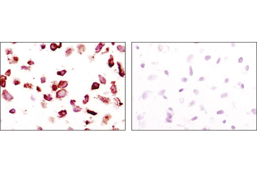 Immunohistochemical analysis of paraffin-embedded NCI-H1703 (PDGFRα+, left) and HCC827 (PDGFRα-, right) cell pellets using PDGF Receptor α (D13C6) XP<sup>®</sup> Rabbit mAb.