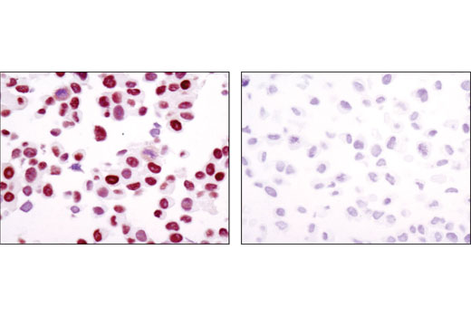 Immunohistochemical analysis of paraffin-embedded LNCaP (AR+, left) and DU145 (AR-, right) using Androgen Receptor (D6F11) XP<sup>®</sup> Rabbit mAb.