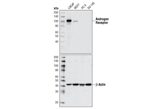 Western blot analysis of extracts from LNCaP (AR+), MCF7 (AR+), PC-3 (AR-), and DU 145 (AR-) cells using Androgen Receptor (D6F11) XP<sup>®</sup> Rabbit mAb (upper) and β-Actin Antibody #4967 (lower).