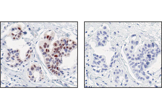 Immunohistochemical analysis of paraffin-embedded human breast carcinoma, using Cyclin D1 (92G2) Rabbit mAb in the presence of control peptide (left) or Cyclin D1 Blocking Peptide #1044 (right).