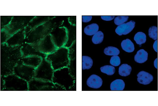 Immunofluorescent analysis of A431 cells, using P-Cadherin Antibody (left). Nuclei in the same cells were stained with DAPI (right).