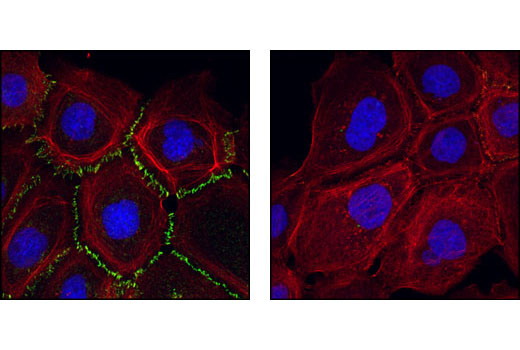 Confocal immunofluorescent images of A431 cells labeled with P-Cadherin Antibody (green, left) compared to an isotype control (right). Actin filaments have been labeled with Alexa Fluor® 555 phalloidin (red). Blue pseudocolor = DRAQ® #4084 (fluorescent DNA dye).