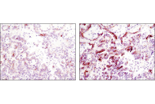 Secondary Antibody - SignalStain® Boost IHC Detection Reagent (HRP, Rabbit) #8114, Signalstain Boost