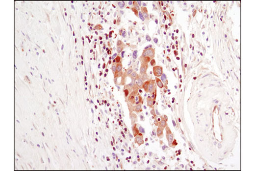 Immunohistochemical analysis of paraffin-embedded human breast carcinoma using PLCγ1 (D9H10) XP<sup>®</sup> Rabbit mAb.