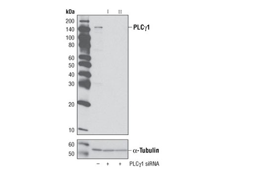 Western blot analysis of extracts from HeLa cells, either mock-transfected or transfected for 48 hours with SignalSilence™ PLCγ1 siRNA I #6293 or siRNA II #6254, using PLCγ1 (D9H10) XP<sup>®</sup> Rabbit mAb.