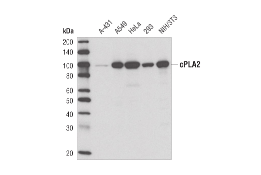 Western blot analysis of extracts from various cell lines using cPLA2 (D49A7) Rabbit mAb.