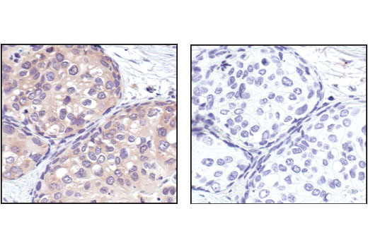 Immunohistochemical analysis of paraffin-embedded human breast carcinoma, using 14-3-3 tau Antibody in the presence of control peptide (left) or antigen-specific peptide (right).