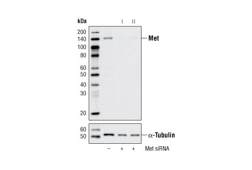 Western blot analysis of extracts from HeLa cells, transfected with 100 nM SignalSilence<sup>®</sup> Control siRNA (Unconjugated) #6568 (-), SignalSilence<sup>®</sup> Met siRNA I #6618 (+) or SignalSilence<sup>®</sup> Met siRNA II (+), using Met (25H2) Mouse mAb #3127 (upper) or α-Tubulin (11H10) Rabbit mAb #2125 (lower). The Met (25H2) Mouse mAb confirms silencing of Met expression, while the α-Tubulin (11H10) Rabbit mAb is used to control for loading and specificity of Met siRNA.