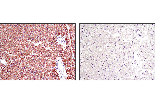 Immunohistochemical analysis of parafin-embedded mouse brown fat using Perilipin-1 (D1D8) XP<sup>®</sup> Rabbit mAb in the presence of control peptide (left) or antigen-specific peptide (right).