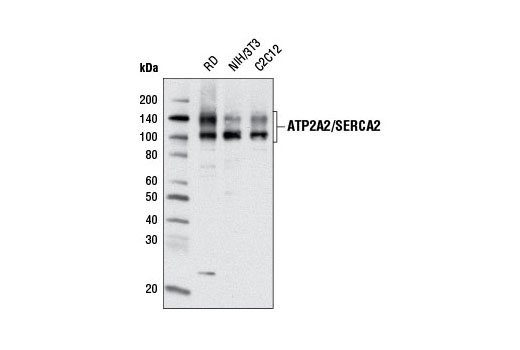 Monoclonal Antibody Calcium-Transporting Atpase Activity