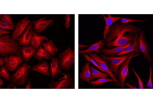 Confocal immunofluorescent analysis of HeLa cells, untreated (left) or SAHA-treated (right), labeled with Acetyl-Histone H3 (Lys9) (C5B11) (Alexa Fluor<sup>®</sup> 647) Rabbit mAb (blue pseudocolor) and β-Tubulin (9F3) Rabbit mAb (Alexa Fluor<sup>®</sup> 555 Conjugate) #2116 (red).