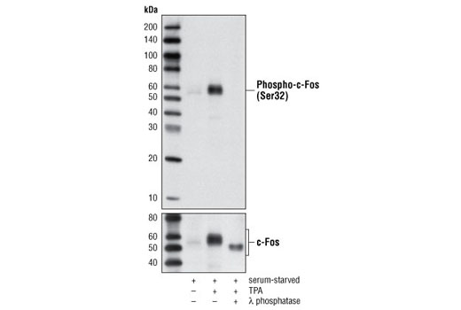 Western blot analysis of extracts from HeLa cells, serum-starved overnight and then either untreated or stimulated for 4 hours with TPA (12-O-Tetradecanoylphorbol-13-Acetate) #4174, using Phospho-c-Fos (Ser32) (D82C12) XP<sup>®</sup> Rabbit mAb (upper) and c-Fos (9F6) Rabbit mAb #2250 (lower). Antibody phospho-specificity is shown by treating lysates with λ-phosphatase.