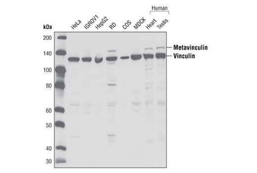 Western blot analysis of extracts from various cell and tissue types using Vinculin Antibody.