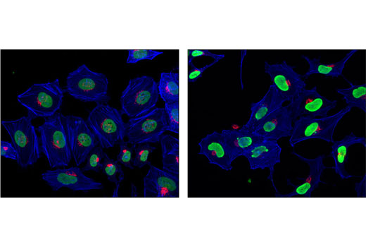 Immunofluorescent analysis of HeLa cells, untreated (left) or treated with Trichostatin A (TSA) #9950 (right), using Acetyl-Histone H4 (Lys5) Antibody (green) and Golgin-97 Antibody (red). Actin filaments were labeled with a dye conjugated phalloidin (pseudocolored blue).