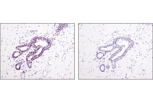 Immunohistochemical analysis of paraffin-embedded human breast using Acetyl-Histone H4 (K5) Rabbit Antibody in the presence of non-acetyl peptide (left) or K5 acetyl-peptide (right).