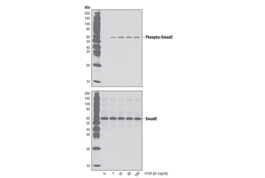 Western blot analysis of extracts from HT-1080 cells untreated or treated with TGF-β2 for 15 minutes, using Phospho-Smad2 (Ser465/467) (138D4) Rabbit mAb #3108 (upper) and Smad2 (86F7) Rabbit mAb #3122 (lower).