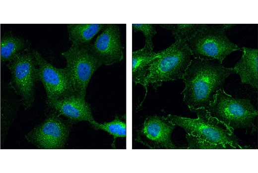 Confocal immunofluorescent analysis of HeLa cells, serum-starved (left) or EGF-treated (#8916, 100 ng/mL for 5 minutes; right), using CDC37 (D11A3) XP<sup>®</sup> Rabbit mAb (green). Blue pseudocolor = DRAQ5<sup>®</sup> #4084 (fluorescent DNA dye).