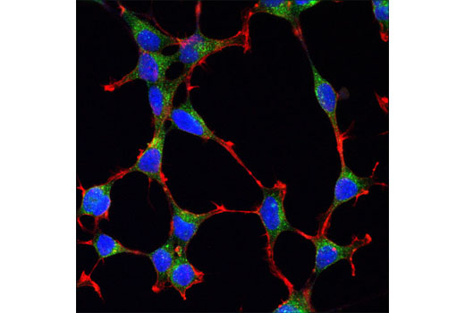 Confocal immunofluorescent analysis of SH-SY5Y cells using Clathrin Heavy Chain (D3C6) XP<sup>®</sup> Rabbit mAb (green). Actin filaments were labeled with DY-554 phalloidin (red). Blue pseudocolor = DRAQ5<sup>®</sup> #4084 (fluorescent DNA dye).