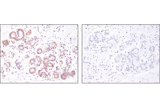 Immunohistochemical analysis of paraffin-embedded human breast using Argonaute 1 (D84G10) XP<sup>®</sup> Rabbit mAb in the presence of control peptide (left) or antigen-specific peptide (right).