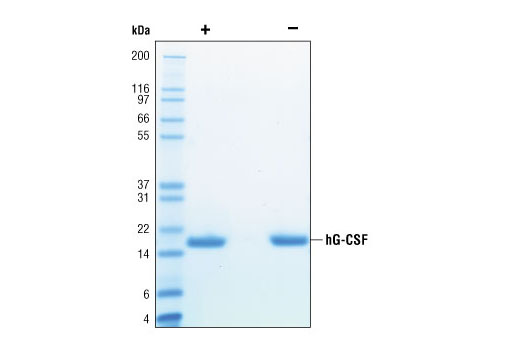 Image 2: Human Granulocyte Colony Stimulating Factor (hG-CSF)