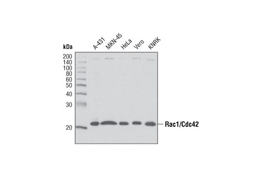 Western blot analysis of extracts from various cell lines using Rac1/Cdc42 Antibody.