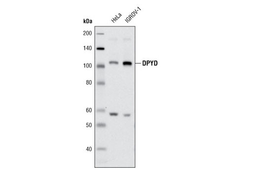 Western blot analysis of extracts from HeLa and IGROV-1 cells using DPYD (D35A8) Rabbit mAb.