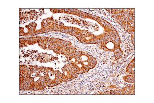 Immunohistochemical analysis of paraffin-embedded human colon carcinoma using VDAC (D73D12) Rabbit mAb.