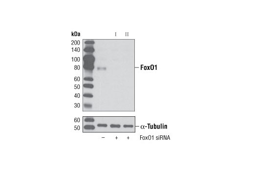 Western blot analysis of extracts from HeLa cells, transfected with 100 nM SignalSilence<sup>®</sup> Control siRNA (Unconjugated) #6568 (-), SignalSilence<sup>®</sup> FoxO1 siRNA I (+) or SignalSilence<sup>®</sup> FoxO1 siRNA II #6256 (+), using FoxO1 (C29H4) Rabbit mAb #2880 (upper) or α-Tubulin (11H10) Rabbit mAb #2125 (lower). The FoxO1 (C29H4) Rabbit mAb confirms silencing of FoxO1 expression, while the α-Tubulin (11H10) Rabbit mAb is used as a loading control.