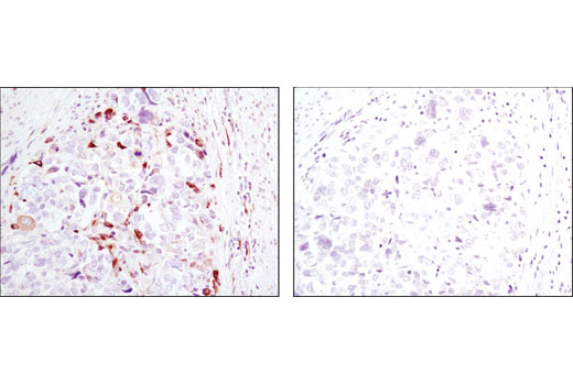 Immunohistochemical analysis of paraffin-embedded human colon carcinoma using Phospho-S6 Ribosomal Protein (Ser240/244) (D68F8) XP<sup>®</sup> Rabbit mAb in the presence of control peptide (left) or antigen-specific peptide (right).